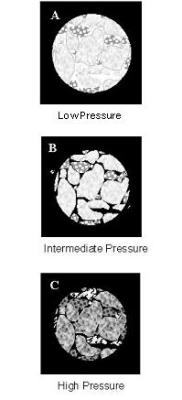Mercury intrusion into pore space as pressure increases; black areas indicate mercury. A. Mercury envelops the mass. B. Mercury fills the interparticle voids. C. Mercury penetrates into the pores of the individual particles.