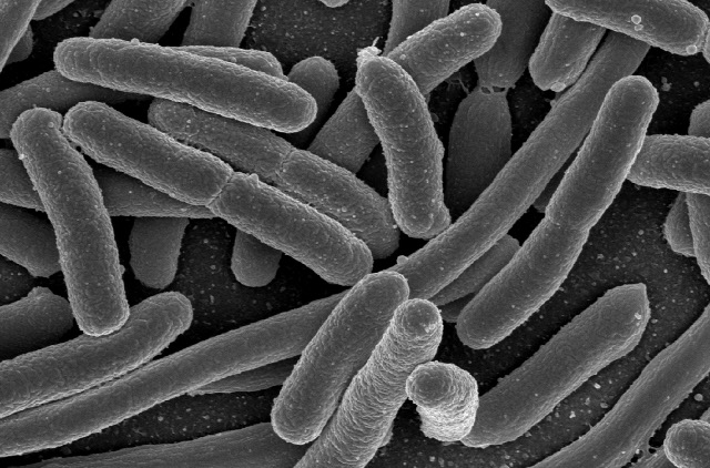 SEM image of E. coli cells.