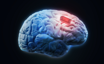 Applications of Nanotechnologies in Brain Implants