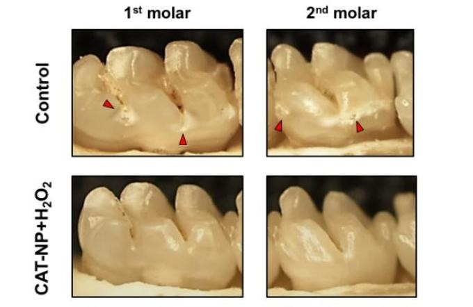 Researchers Use Iron-Containing Nanoparticles to Significantly Reduce Onset, Severity of Cavities