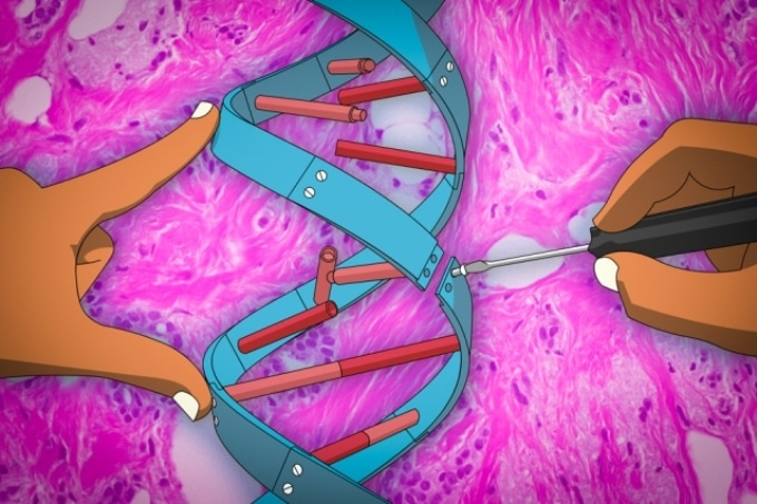 MIT Researchers Develop Gene Therapy Method with Potential to Arrest Cancer Metastasis