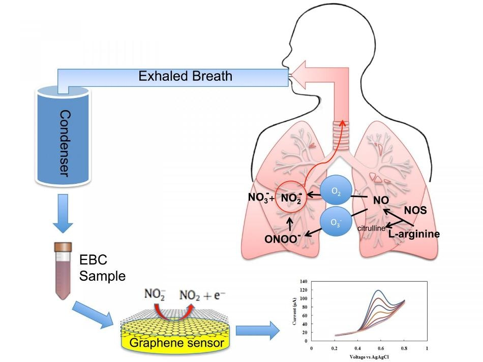 New Graphene-Based Sensor to Detect Inflammation in Lungs