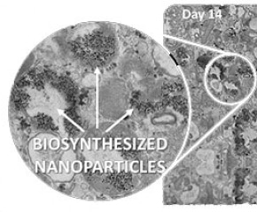 Researchers Investigate Life of Magnetic Nanoparticles Within Cells