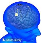 DARPA Awards Lawrence Livermore Lab $5.6 Million for Development of Implantable Neural Interface