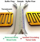 Contact-Free Microfluidic System Uses Acoustic Tweezers to Isolate Circulating Tumor Cells