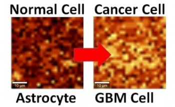 Interfacing System Can Help Differentiate Single Cancerous Cell from Normal Cell Using Graphene