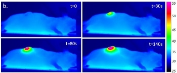 Researchers Study Effectiveness of Nanohyperthermia in Softening Tumors