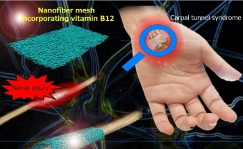 Nanofiber Mesh for Wrapping Injured Nerve and Promoting Regeneration