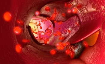 Nanolaser can Identify, Kill Metastasized Cancer Cells in Blood Stream