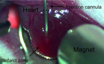 Nanoparticle-Loaded Cells Could Help Improve Heart Function Following Myocardial Infarction
