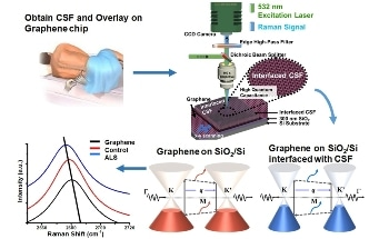 Graphene Used to Detect ALS and Other Neurodegenerative Diseases